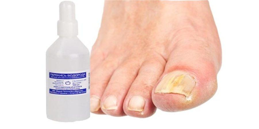 Профессор неумывакин лечение грибка ногтей перекисью водорода 24
