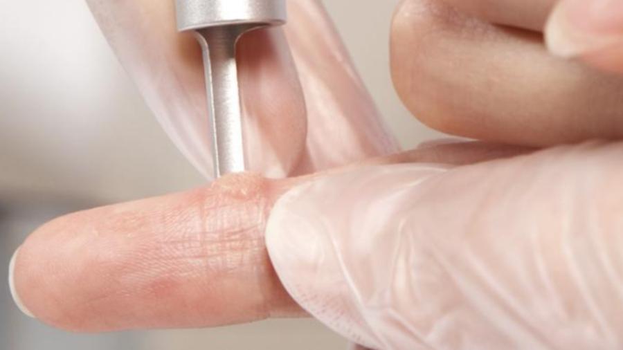 Удаление шипицы на пальце руки