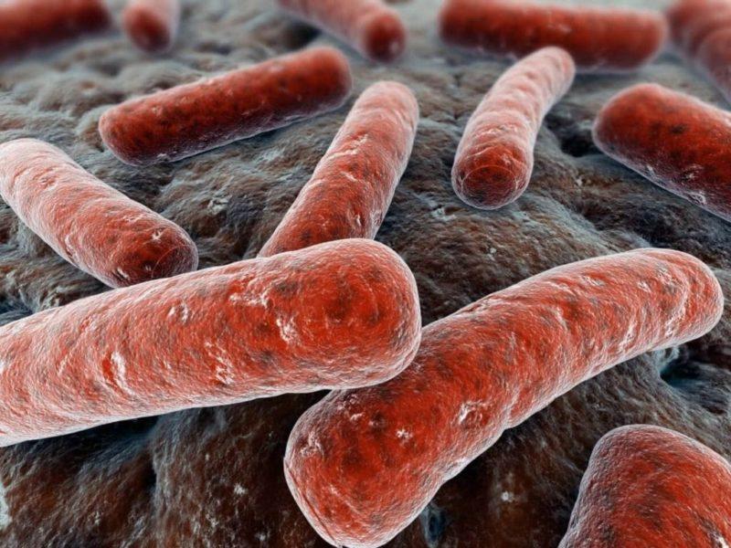 Вирусная инфекция