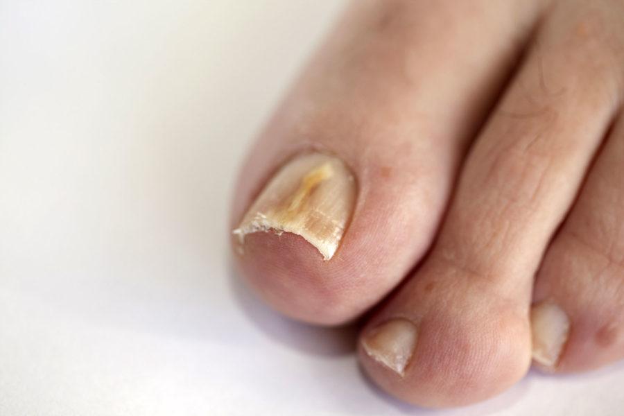 Пораженный грибком ноготь