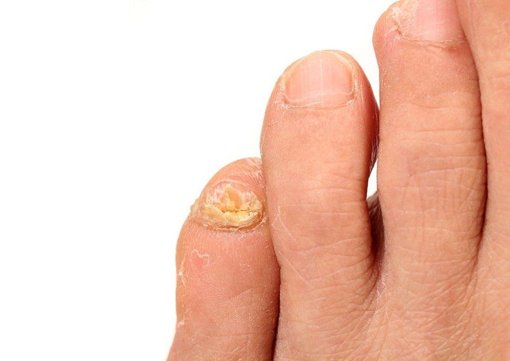 Чего боится грибок ногтей на ногах