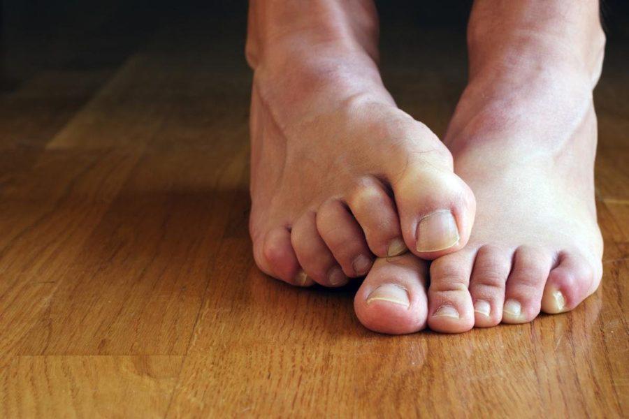 виды грибка на ногах