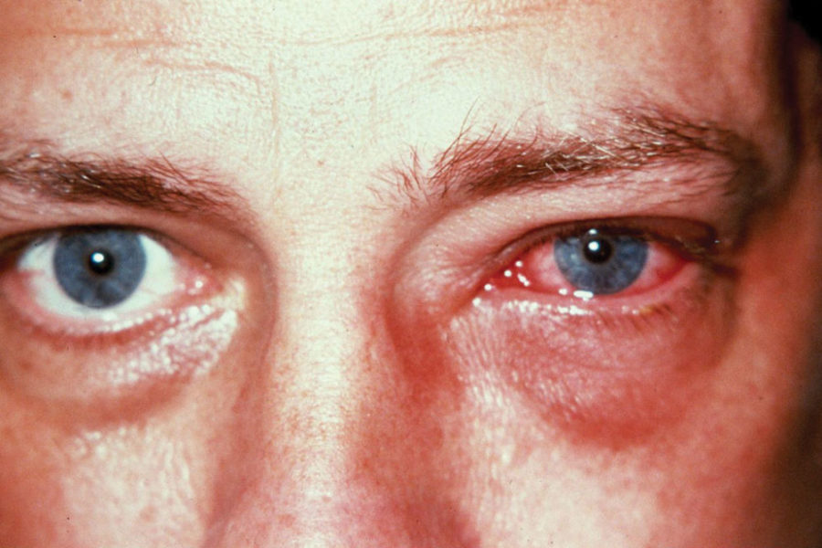 Микоз глаз