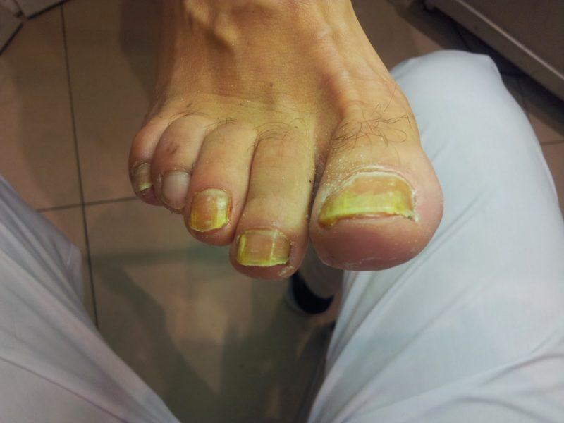 Врач лечащий грибок ногтей