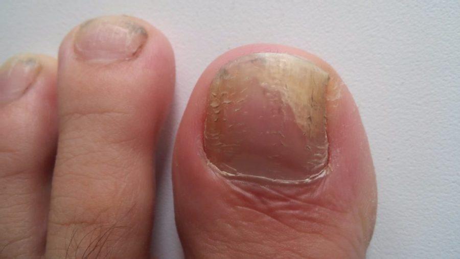 Поврежденный ноготь