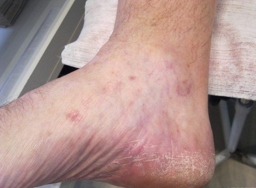 Поражение кожи ног грибком