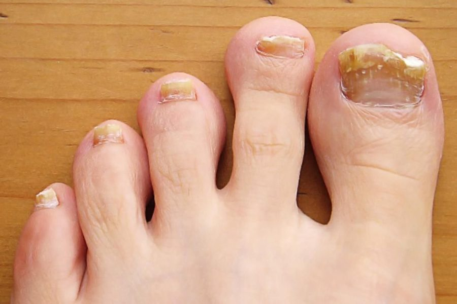 Типы грибка ногтей на ногах
