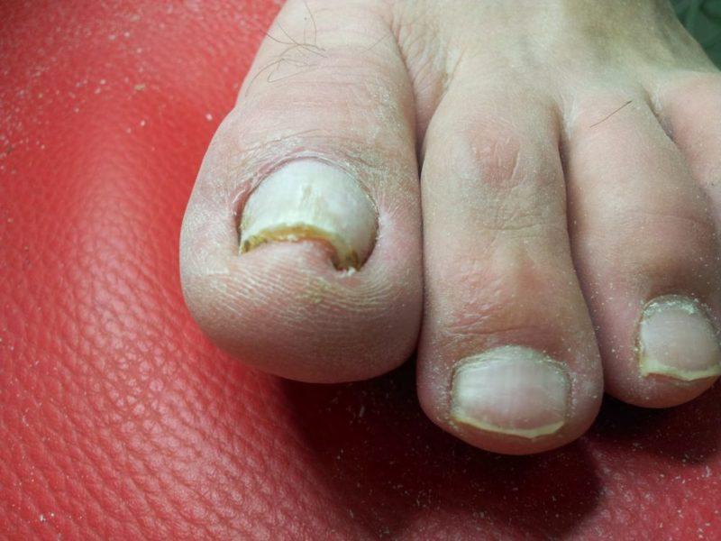 Уплотнение ногтя на большом пальце ноги