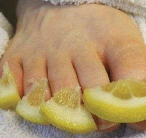 Кусочки лимона на зараженных ногтях
