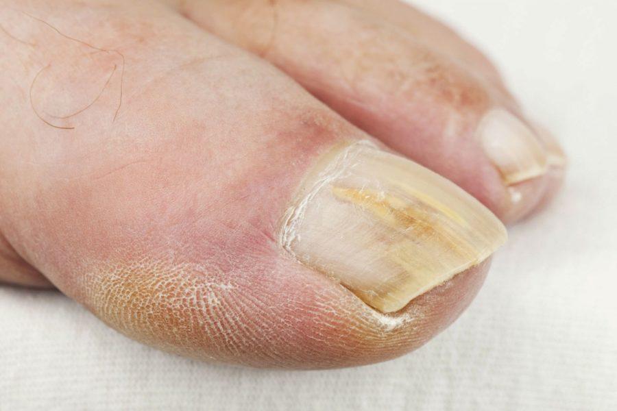 Флуконазол от грибка ногтей инструкция
