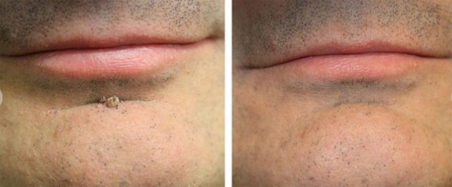 До и после лазерной операции