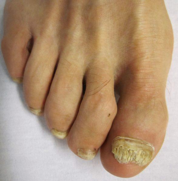Виды грибка ногтей