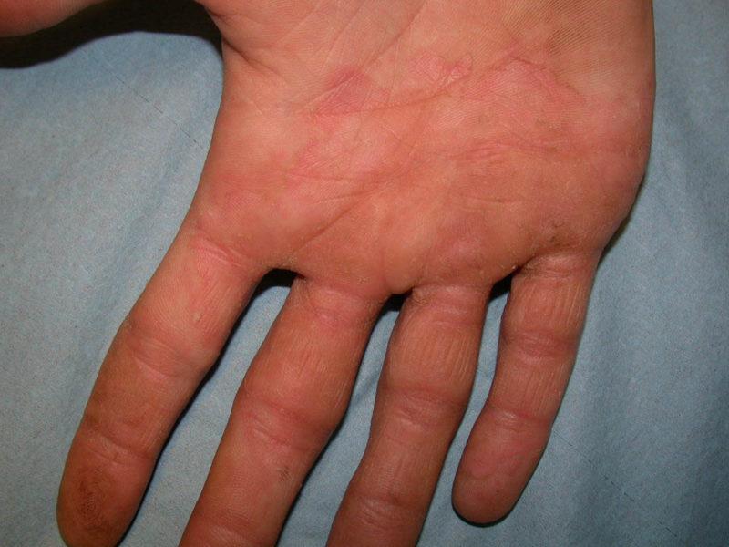 Проявления дерматофитоза