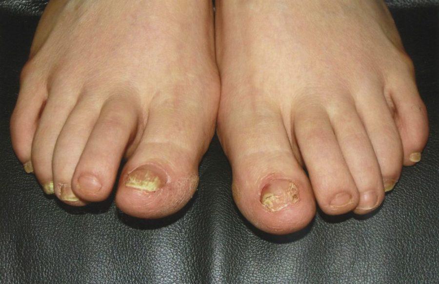 Проявления микоза на ногтях