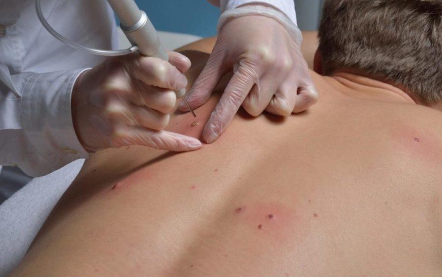 Удаление наростов на спине