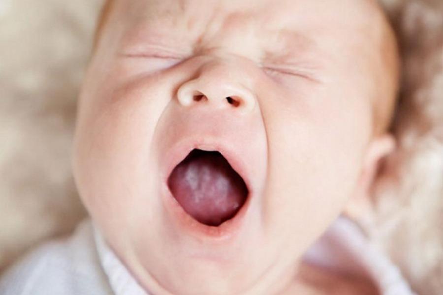 Молочница у ребенка на языке