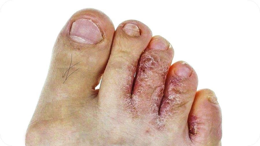Замучил грибок между пальцев ног