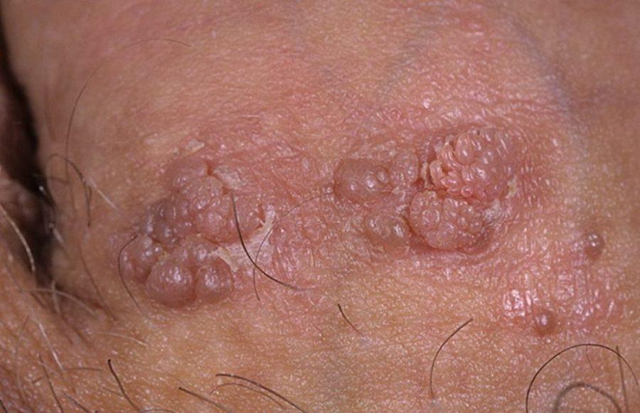 Папилломы на коже