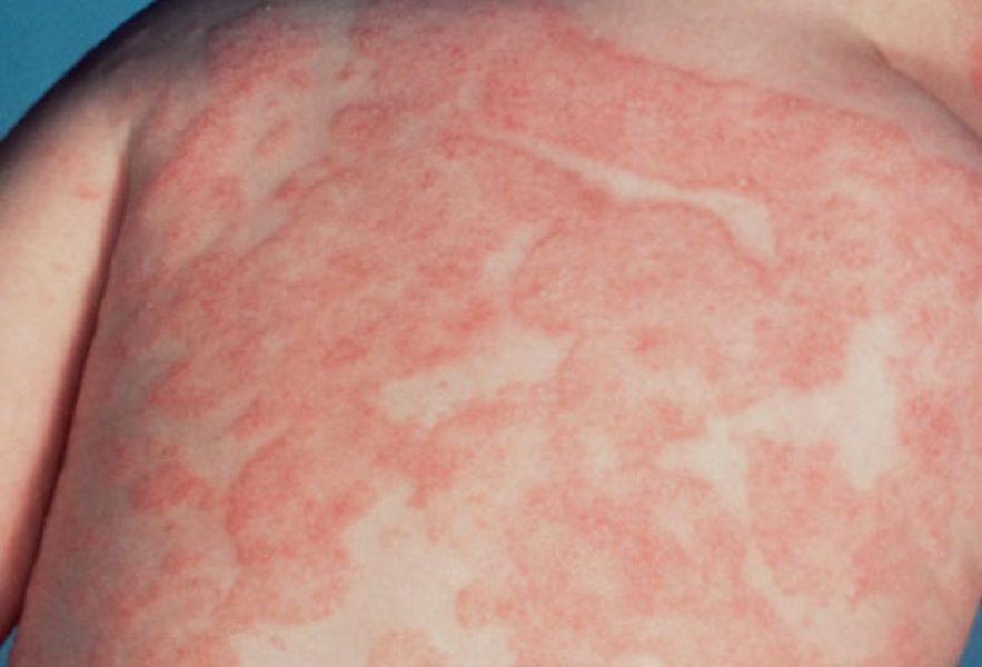 Кандидоз кожи  Эффективные методы лечения кандидоза кожи симптомы и лечение