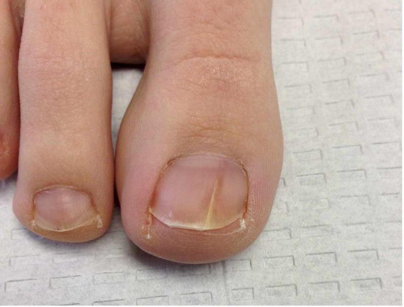Средство от грибка на большом пальце ноги народное средство