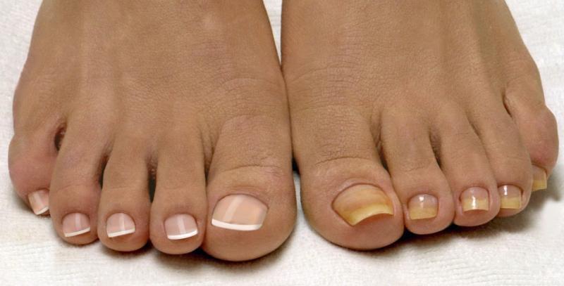 Ванночки от грибка ногтей на ногах. Готовим в домашних условиях!