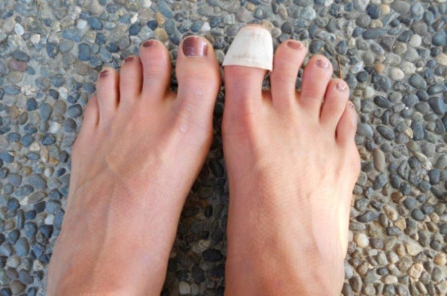 Пластырь на больном ногте