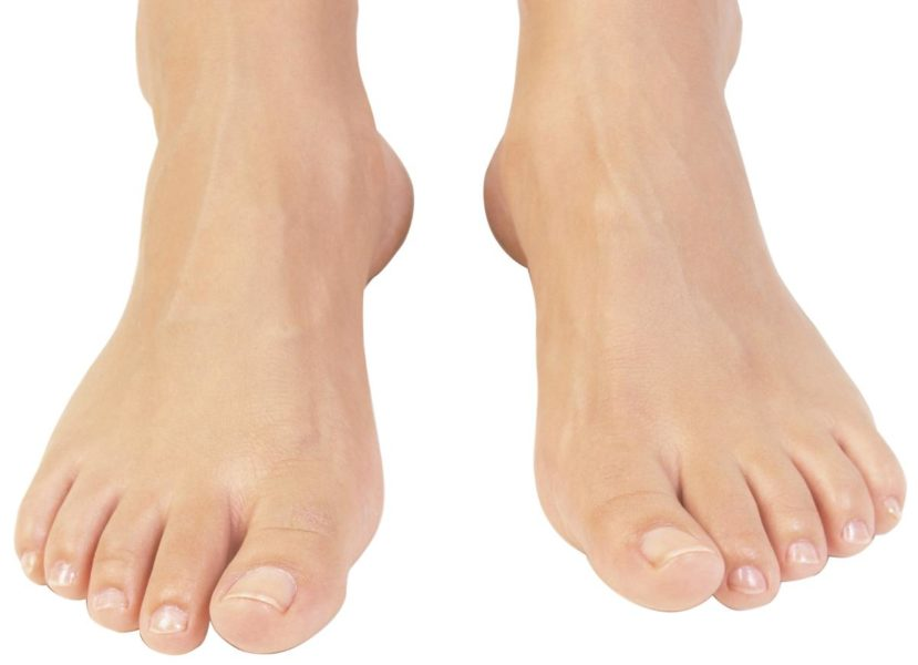 Зараженные грибком ноги