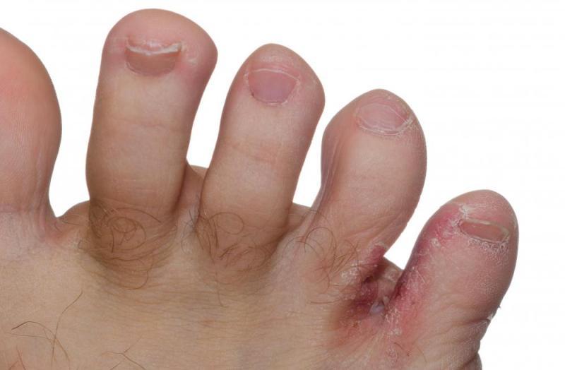 Грибок между пальцами ног: лечение в домашних условиях и народными средствами