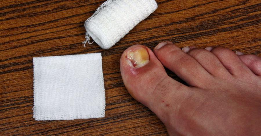 лечить грибок ногтей перекисью водорода