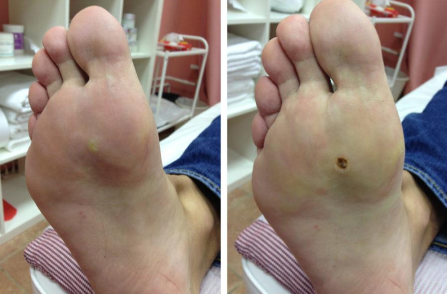 Удаленная шипица: до и после операции