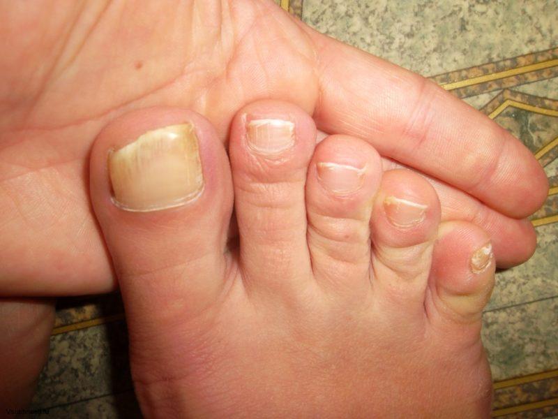 Заражение грибком ногтей