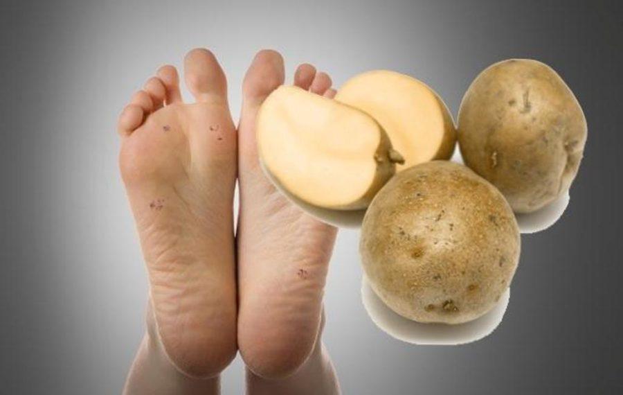 Сырая картошка от бородавок