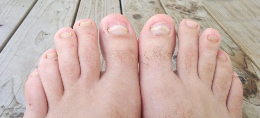 Уничтоженные грибком ногти