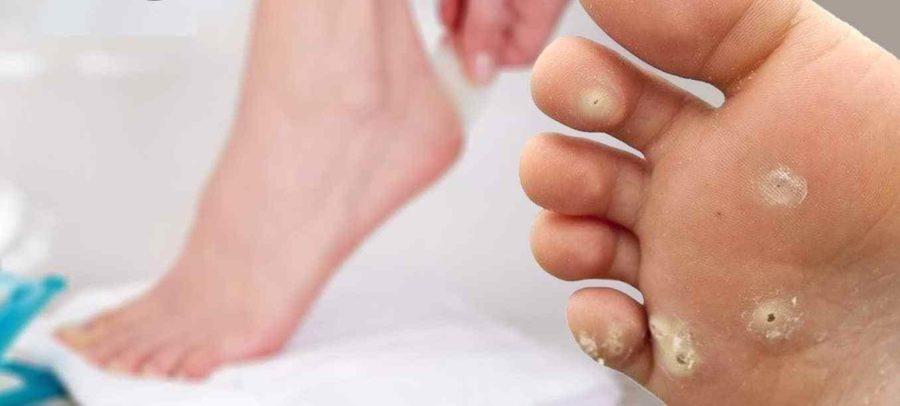 Шипицы на ноге