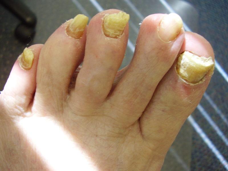 Удаление грибкового ногтя