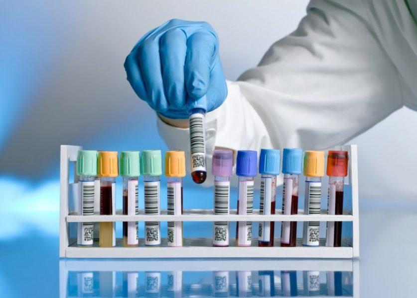 Кровь для анализа на ВПЧ