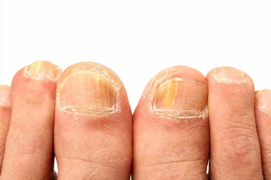 Аналоги препаратов от грибка ногтей
