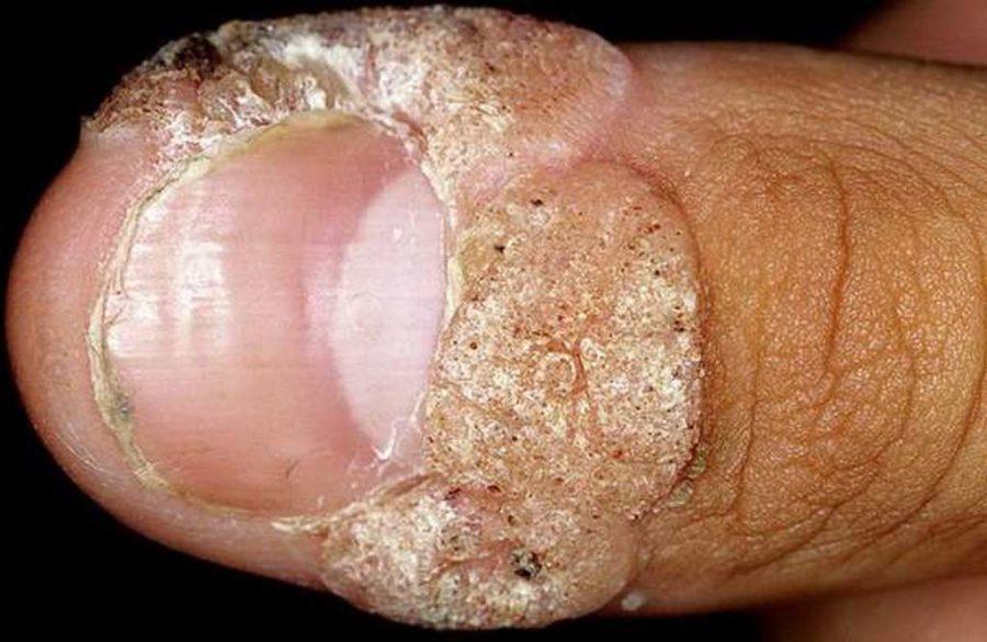 Скопление бородавок возле ногтя