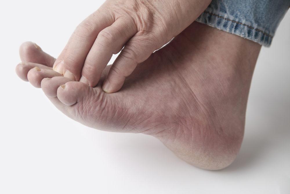 Грибок пальцев ног лечение народными средствами