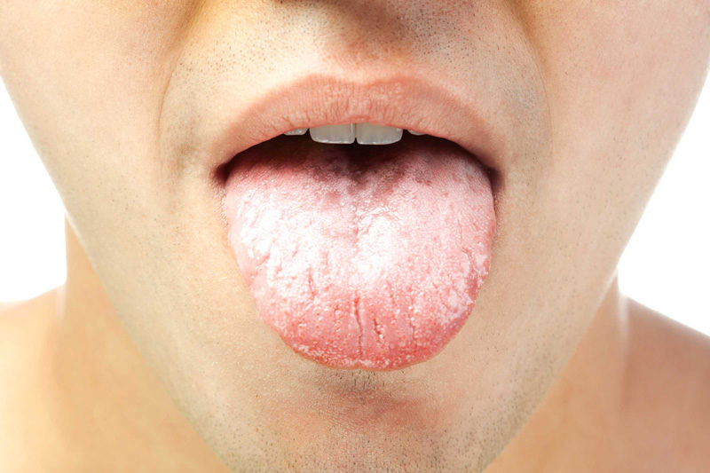 Молочница (кандидоз) в полости рта. Симптомы и лечение