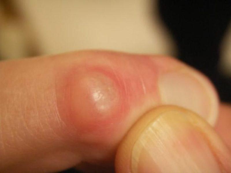 Бородавка на одном из пальцев