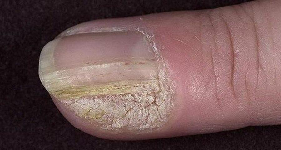 Бородавка в области ногтя
