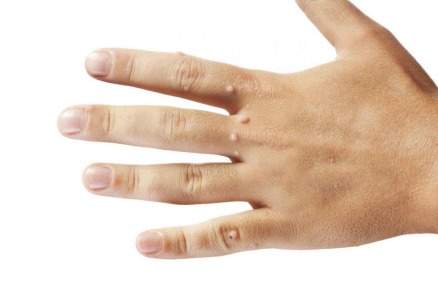 Бородавки на руке