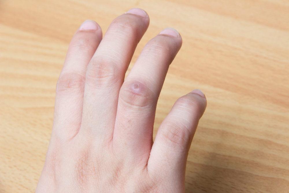 Бородавка на пальце руки