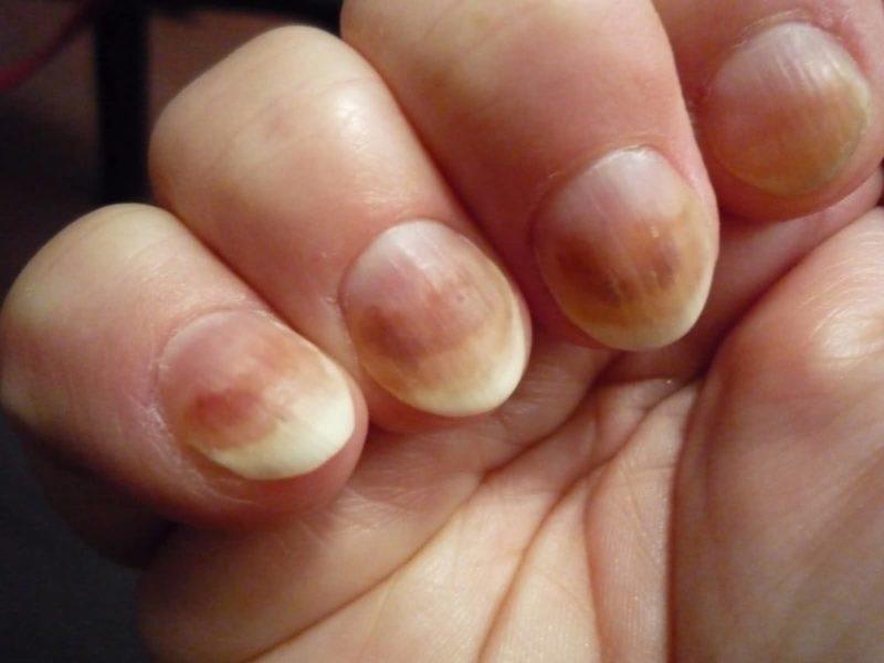 Недорогое средство против грибка ногтей на руках
