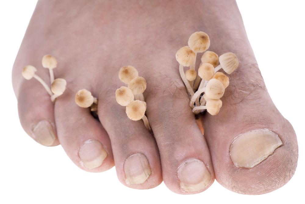 Ноги пораженные грибком