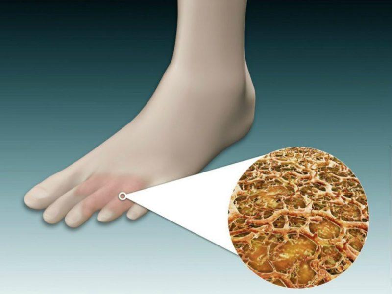 Керосин против грибка ногтей