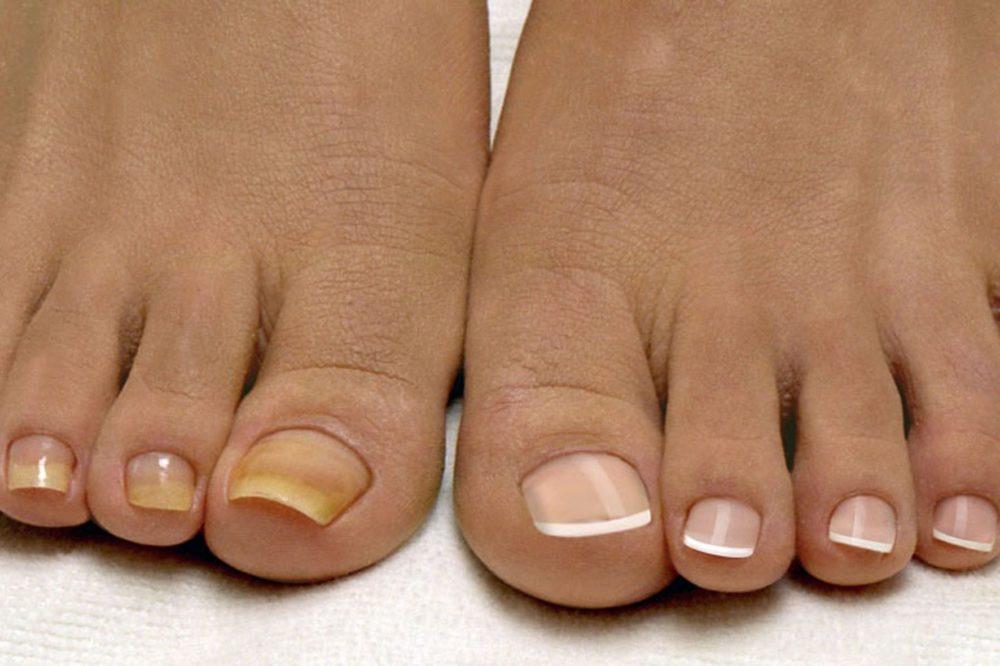Лекарство против грибка на ногах