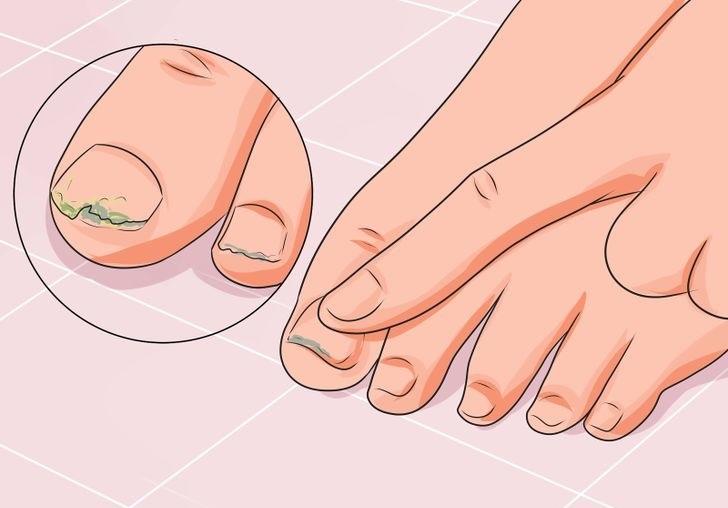 Противогрибковые капли для ногтей. Самые эффективные и недорогие
