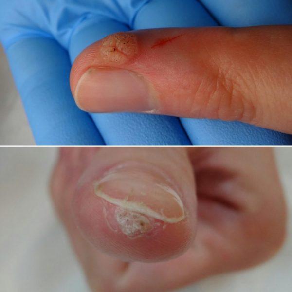 Новообразования на пальце